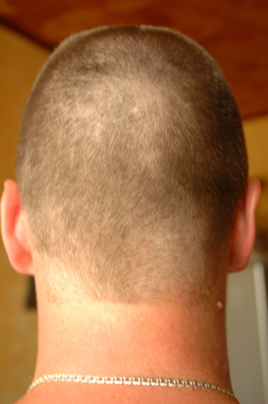 фото кантик на шее